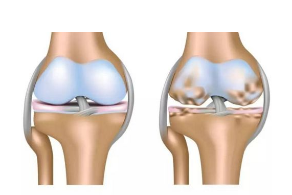 【健康解碼】你的膝關節也會咔咔作響嗎?