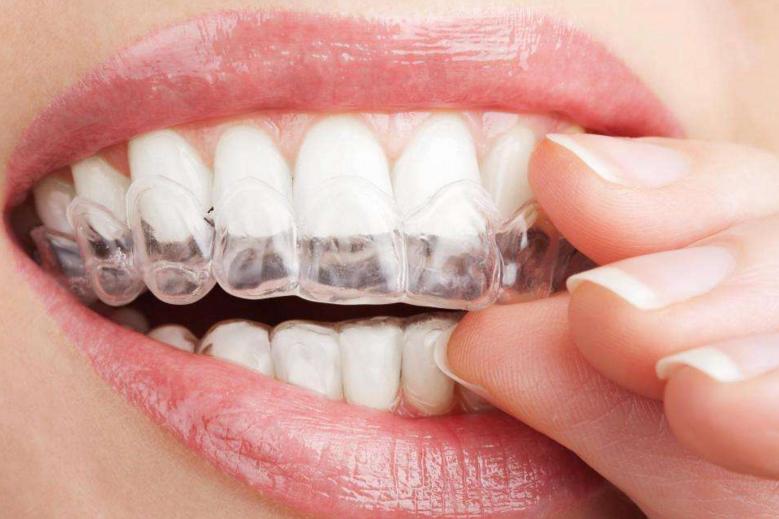 【健康解码】关于隐形牙齿矫正器的事