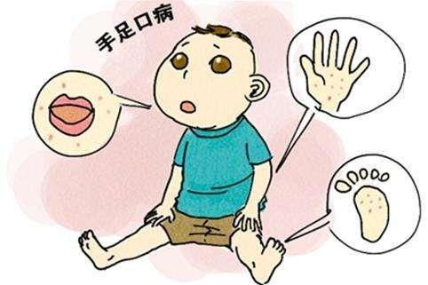 【健康解码】手足口病的这些,年轻爸妈一定要知道