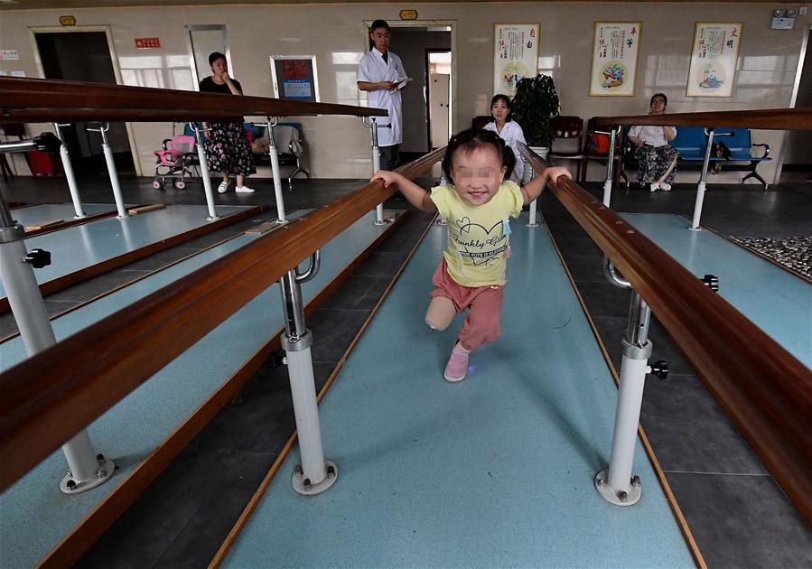 """3岁截肢女童笑笑:""""长大后我要跳芭蕾"""""""