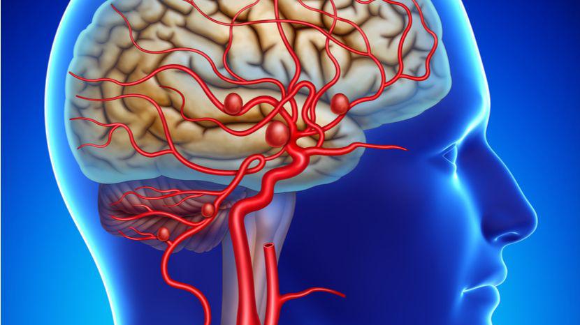 【健康解碼】顱內動脈瘤破裂出血該怎麼辦?