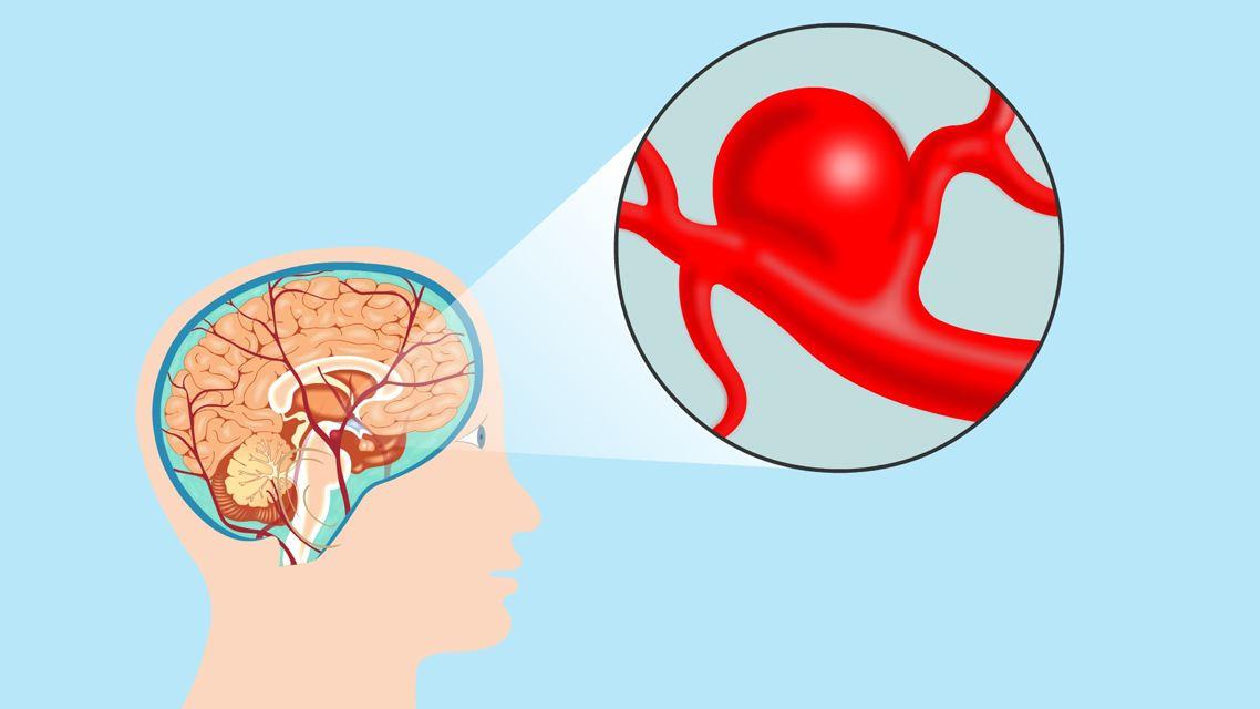 【健康解碼】腦動靜脈畸形是怎麼回事?