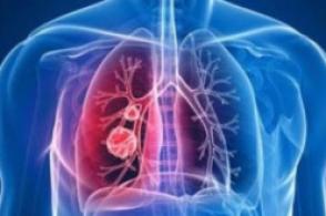 權威專家對信陽新縣兩例新冠肺炎病例的釋疑